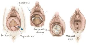 rectocele behandeling bij de vrouw