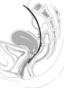 rectocele behandeling tekening
